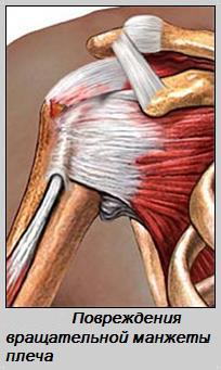 васстонавление при разрыве связка плечевого сустава